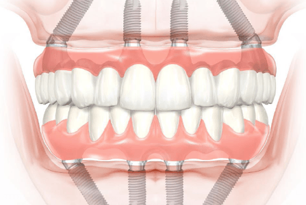 Dental implant dentures diagram